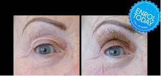 Upper Eyelid Tightening